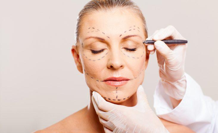 Cirugía estética a los 60 años dra doctora johanna hernandez cirujana plastica cali colombia plastic surgery